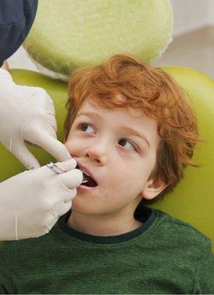 Çocuklarda Diş Kırılması